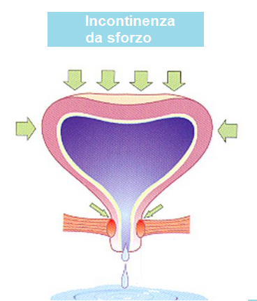 Incontinenza urinaria e laparotomia